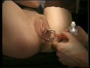La caméra explore l rectal clip